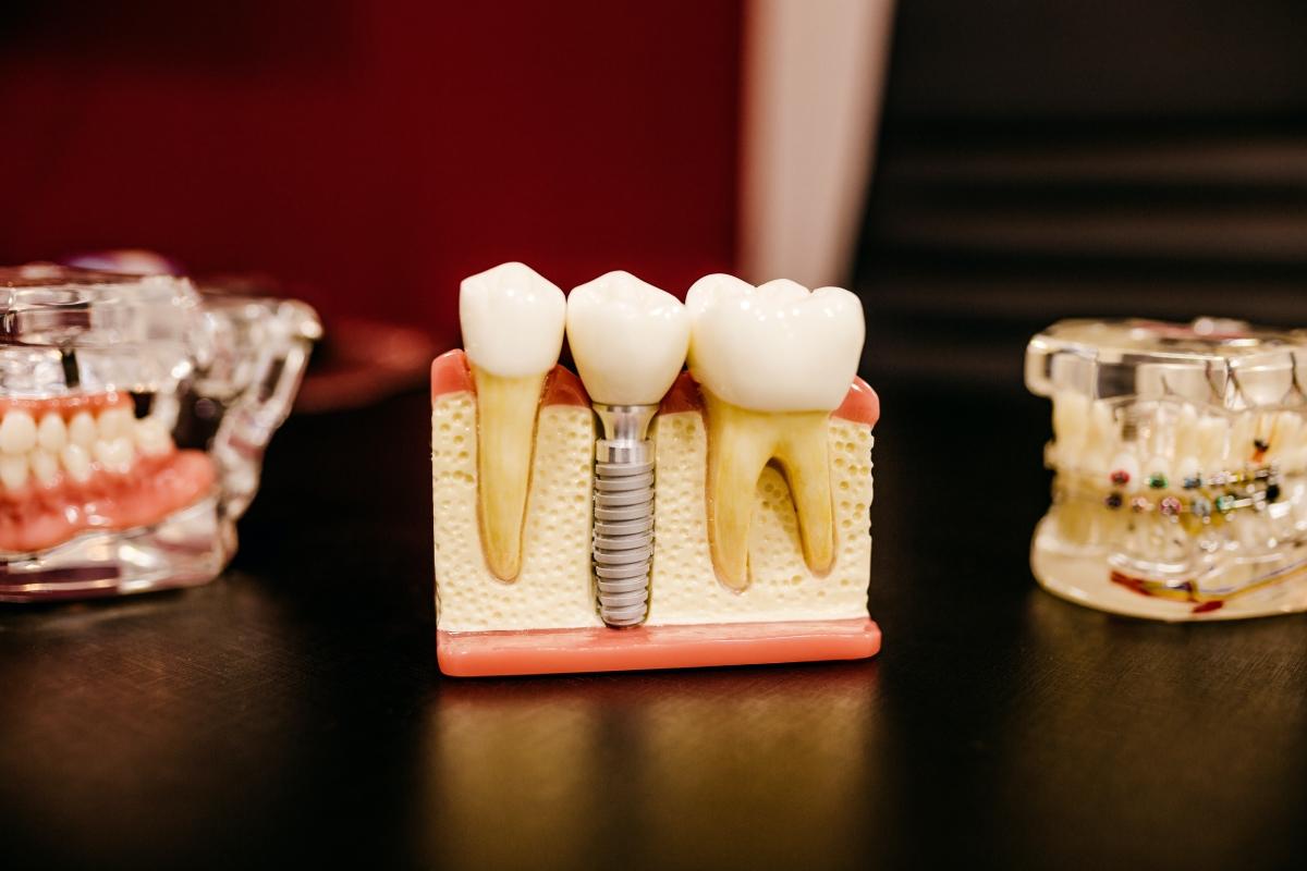 Implantes dentales. Mitos y Verdades